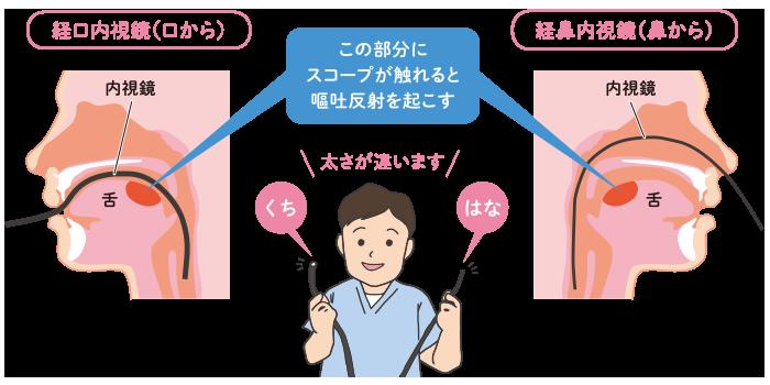 視 検査 内 胃 鏡